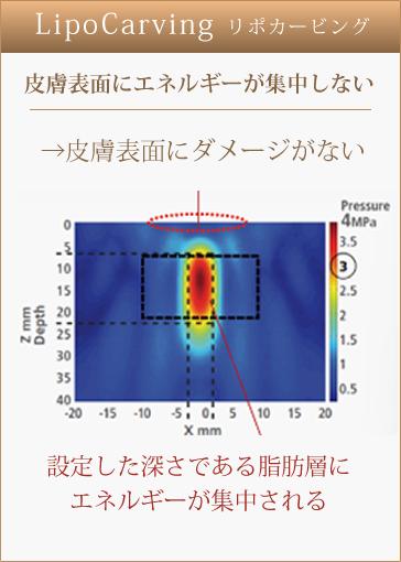 Di-Lipo【深部加温超音波】