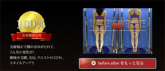 美療矯正で脚の歪みがとれて、こんなに変化が!脚痩せ美脚、美尻、ウエストのくびれ、スタイルアップ?